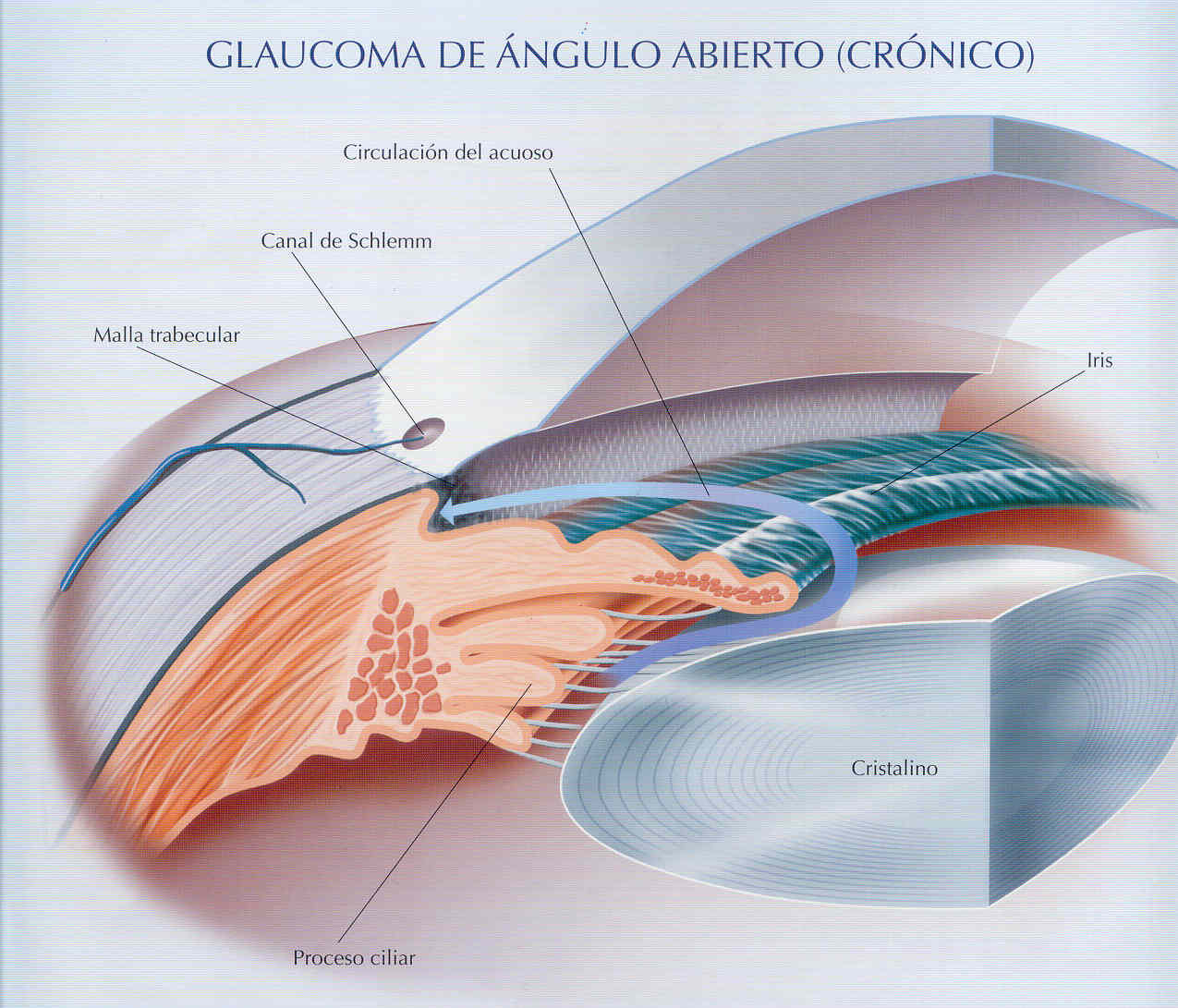 GLAUCOMA ANG ABIERTO.jpg